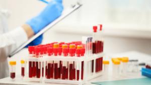 анализ крови на биохимию таблица